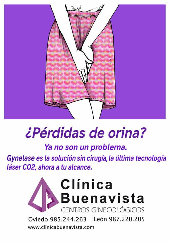perdidas de orina Gynelase Clinica Buenavista